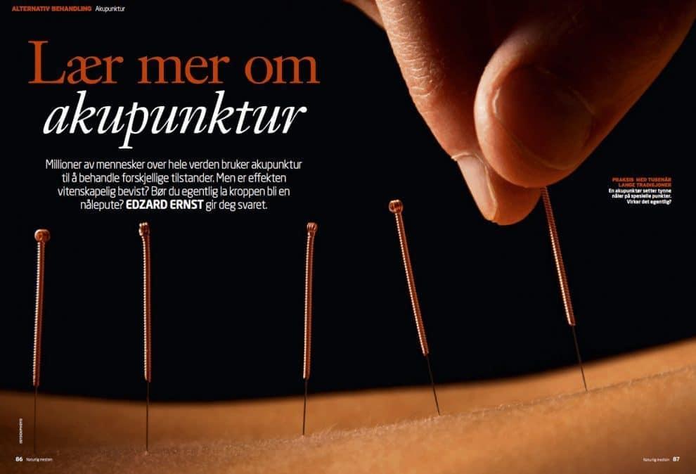 Lær mer om akupunktur, oppslag